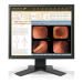 Eizo RadiForce MX191