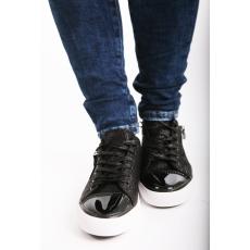 Impresszió Fekete fűzős fényes tornacipő