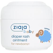 Ziaja Baby Kidörzsölés elleni krém, 50 ml babaápoló krém